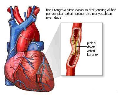 Ciri –Ciri Penyakit Jantung Koroner dan Penyebab Utamanya