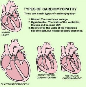 15. ciri lemah jantung 1