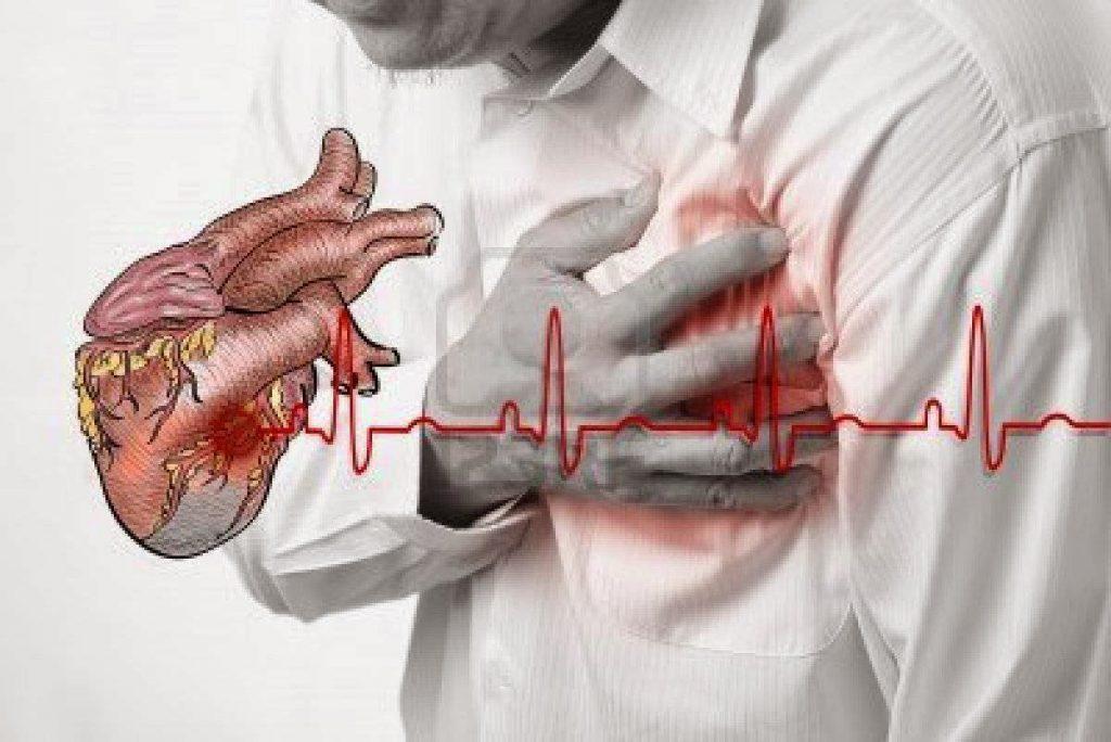 18. ciri penyakit jantung 2