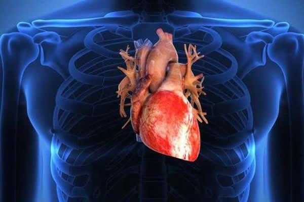 19. ciri serangan jantung 2
