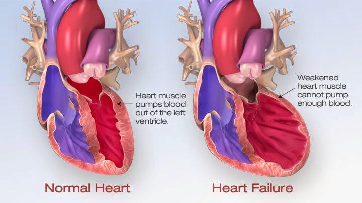 20. Gagal Jantung 2