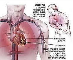 27. Gejala penyakit jantung 1