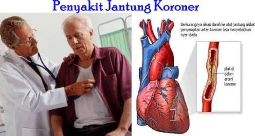 Bahaya Gejala Penyakit Jantung Koroner Pada Wanita