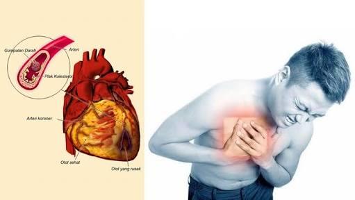 30. gejala sakit jantung 2