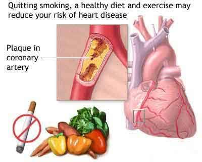 Apakah Jantung Koroner adalah Penyakit yang Tidak Dapat Disembuhkan?