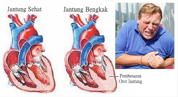 6. cara menyembuhkan penyakit jantung 2