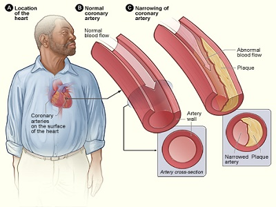 7. ciri ciri jantung koroner 2