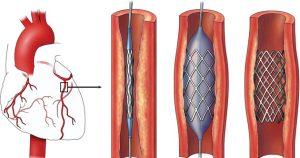 Implantasi Stent