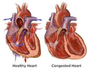 Jantung Berdebar Sangat Kencang