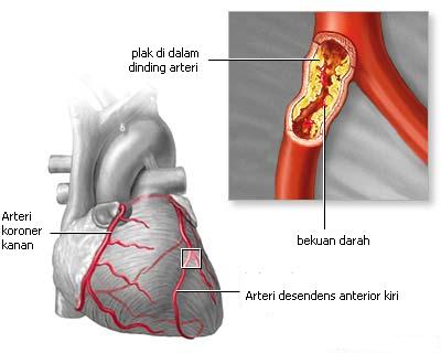 aliran darah jantung 2
