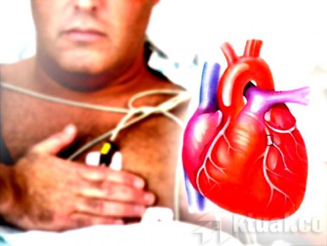 Begini Cara Mencegah Penyakit Jantung Sebelum Terlambat