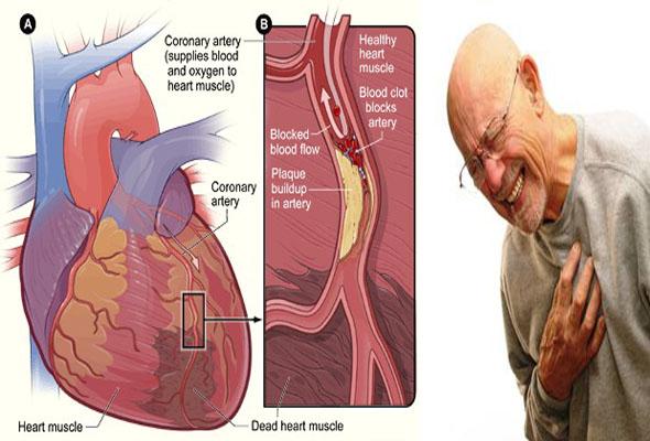 cara mengobati sakit jantung2