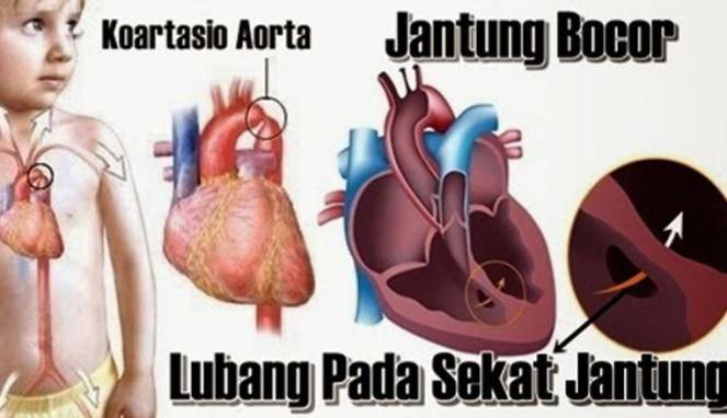 3 Obat Penyakit Jantung Yang Berasal Dari Alam