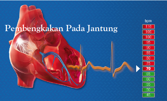 4 Obat Pembekakan Jantung Terpopuler