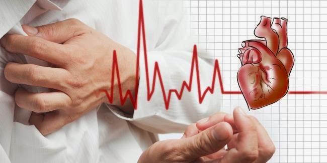 Bermacam-macam Obat Alami Jantung