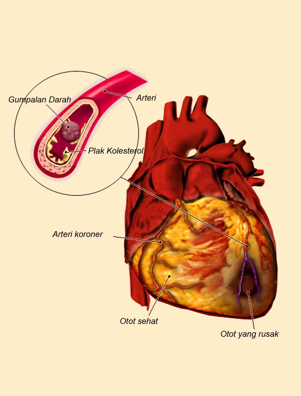 Apa Itu Penyakit Jantung Koroner
