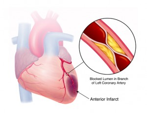 Apa Saja Penyebab Penyakit Jantung Koroner