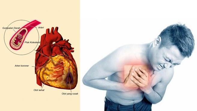Bagaimana Cara Melakukan Pencegahan Penyakit Jantung