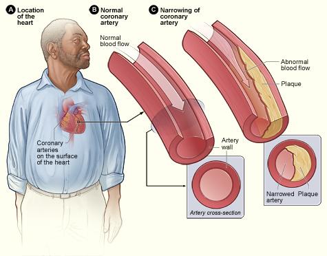 Gejala dan Ciri-Ciri Penyakit Jantung Koroner