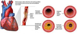 Macam-macam Penyakit Jantung dan Penyebabnya