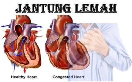 Mengenal Lebih Jauh Tentang Penyakit Jantung Lemah