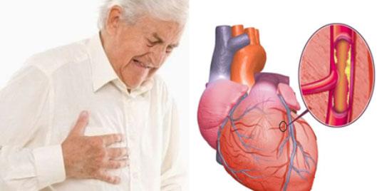 Mengenali Penyebab Penyakit Jantung