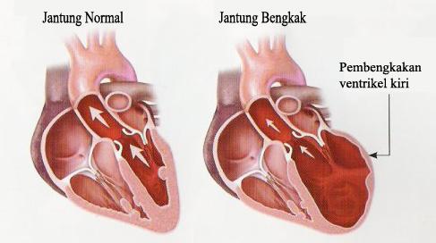 Obat Jantung Bengkak Alami dan Mudah Didapatkan