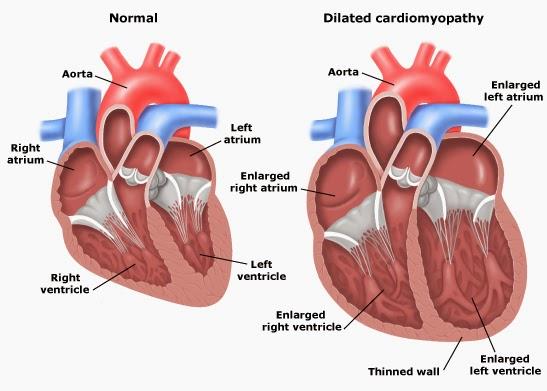 Obat Jantung Bengkak beserta Semua Gejala Penyakitnya