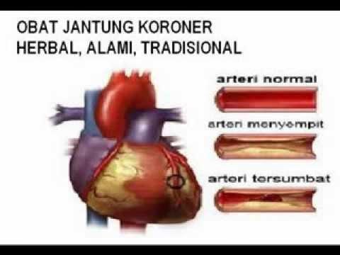 Obat Jantung Koroner Tradisional yang Mudah dan Ampuh