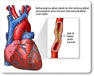 Obat Penyakit Jantung Koroner Terbaik