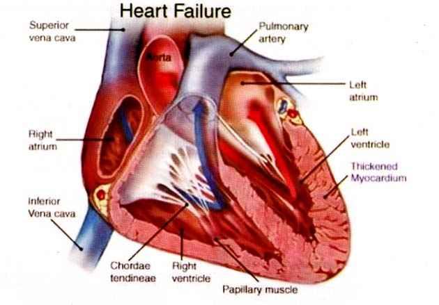 Pengertian Jantung Koroner Beserta Gejalanya