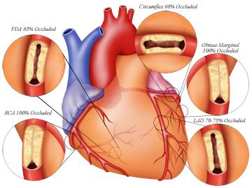 Pengobatan Penyakit Jantung Koroner Yang Efektif