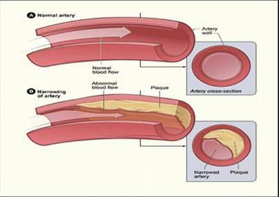Pengobatan Penyempitan Pembuluh Darah Jantung