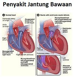 jantung bawaan