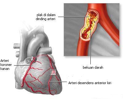 kelainan jantung dini